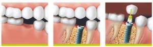 implant dentar Colentina