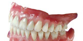 sfaturi pentru proteza dentara