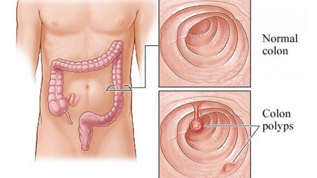 simptome polipi colon