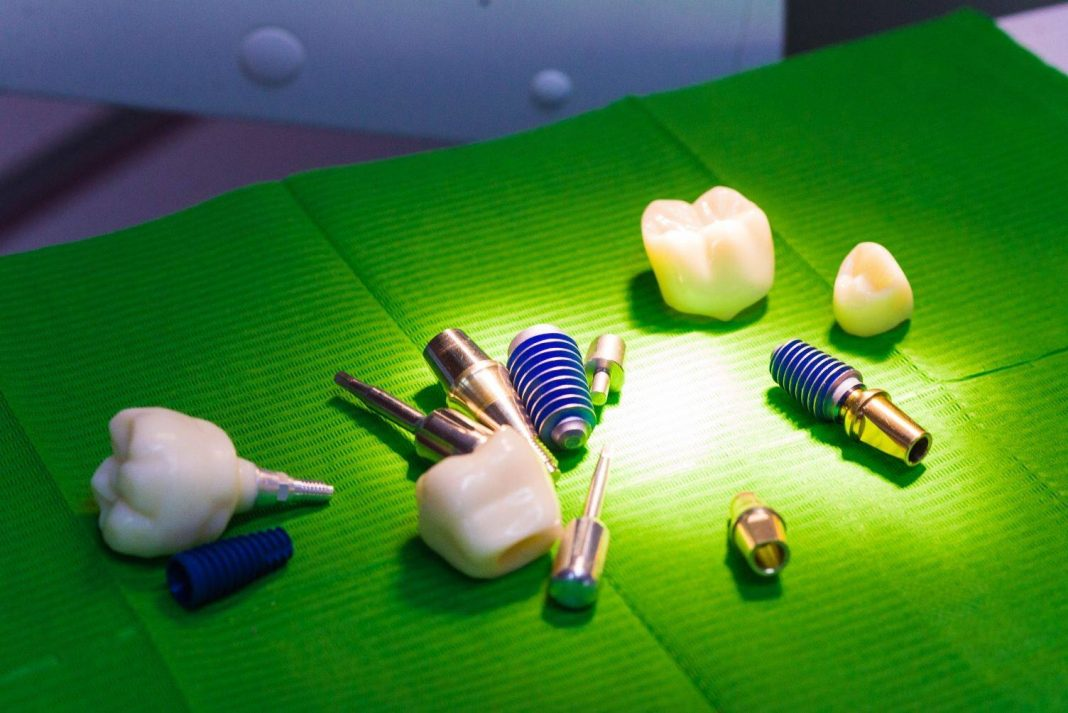 preturi pentru implanturi dentare